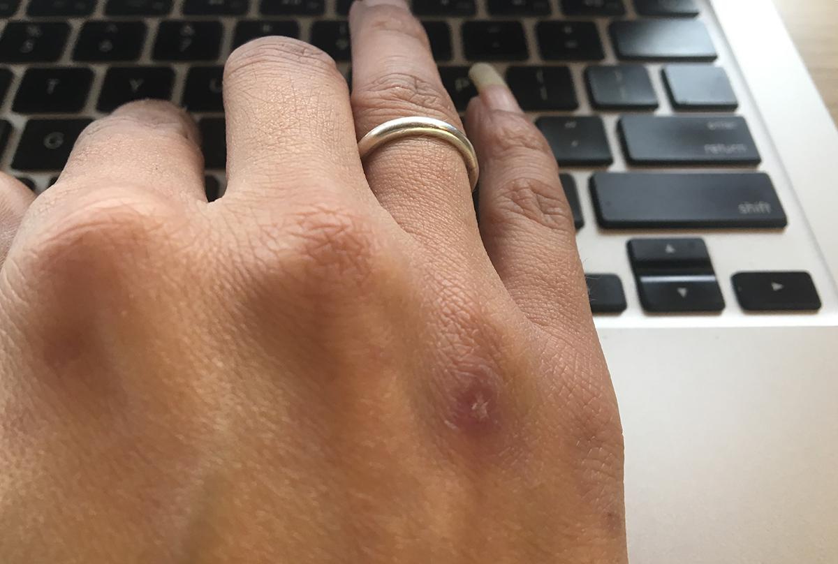 Ladies_hand_bruised